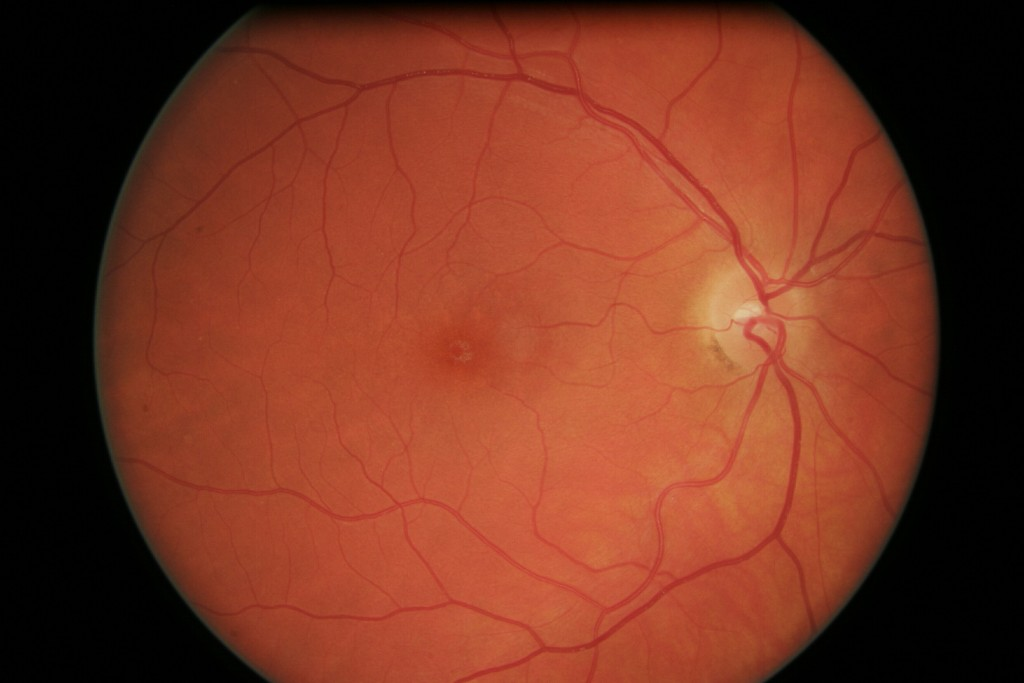 Gene Therapy temporarily restores eyesight in LCA caused retinal sensitivity