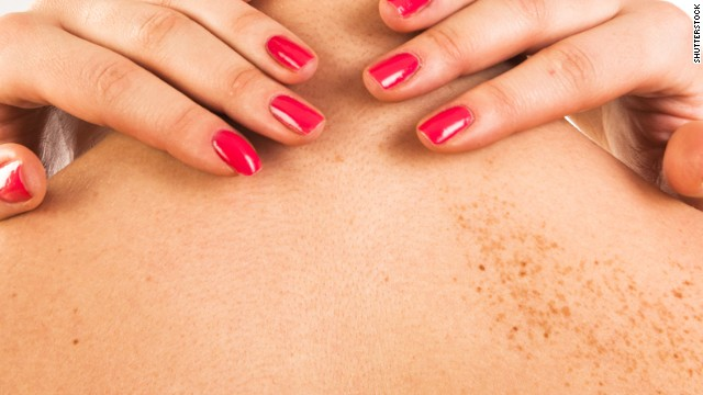 People with fewer Moles more prone to develop deadly Skin Cancer Melanoma, finds research